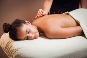 Get acupuncture treatment at Physio Logic in Downtown Brooklyn