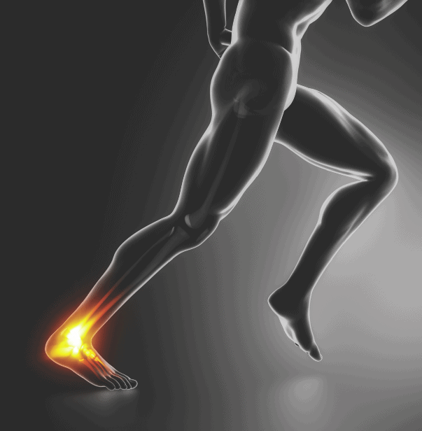 Ankle Sprain Treatment at Physio Logic Physical Therapy in Downtown Brooklyn