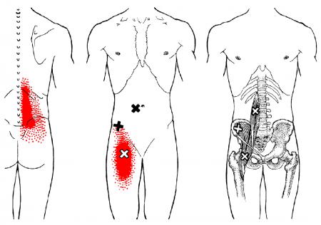 Iliopsoas anatomical drawing