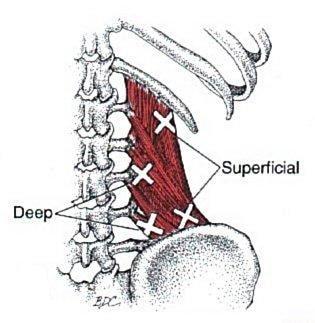 Quadratus Lumborum anatomical drawing