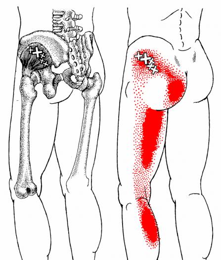gluteus minimus anatomical drawing