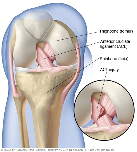 knee pain treatment: healing a ligament tear | physio logic in, Human body