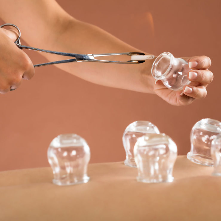 Cupping Therapy Before it Was Cool - Cupping Therapy | https://physiologicnyc.com/acupuncture/