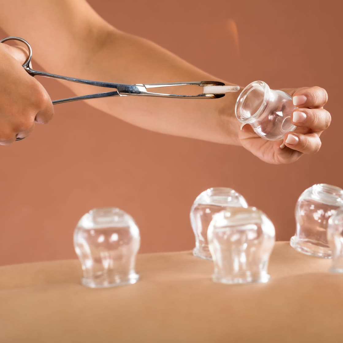 At Home Cupping Therapy: Cupping Therapy: Before It Was Cool