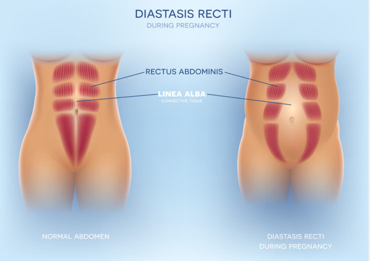 Diastasis Recti - Diastasis Rectus Abdominis or Separation of Abdominals During Pregnancy | https://physiologicnyc.com/physical-therapy/