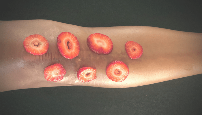 nutrition for wound healing in brooklyn new york